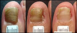 Laser Treatment for Fungus Toenails Treatment | Foot Doctor